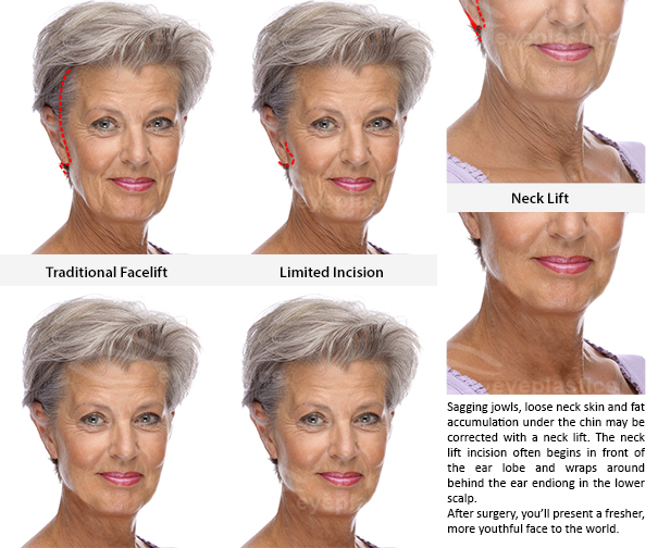 traditional facelift face lift jowl surgery loose neck